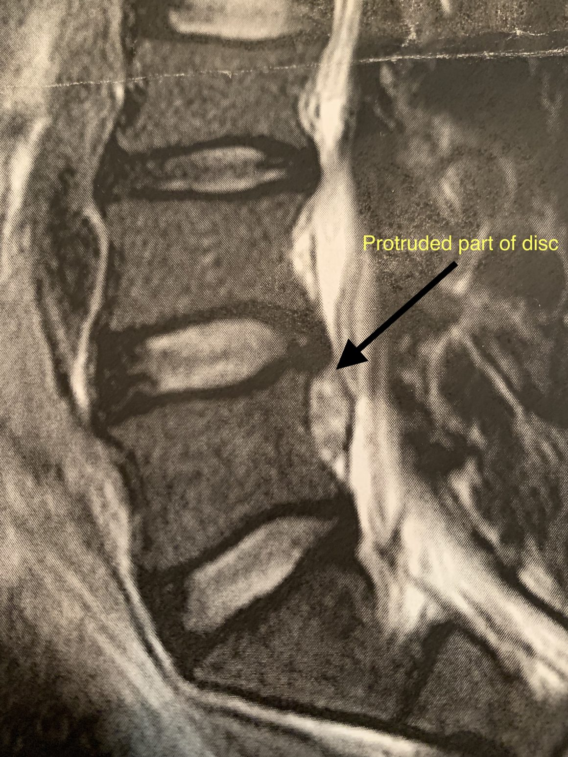 Picture of my back injury that shows where the disc has protruded.